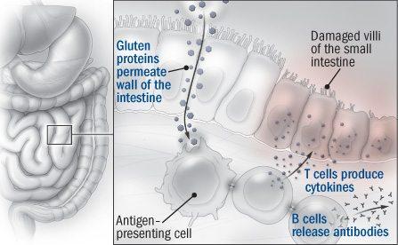 réponse auto-immune au gluten