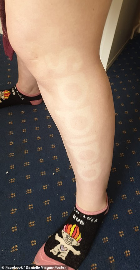 DanielleViagus-Foster had the sun beating down on her for nearly an hour and a half, not realising she was being turned into a walking advertisement by dangerous UV rays