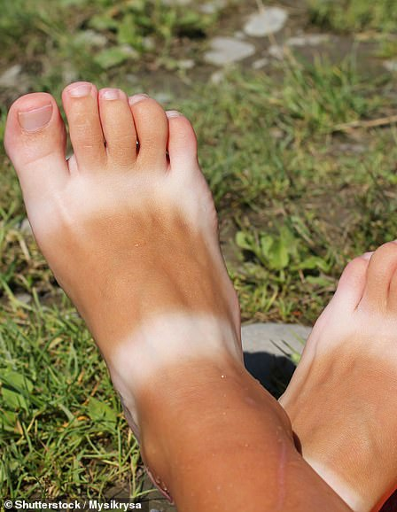 On the rise: This trend involves avoiding sun tan lotion around a specific area to purposely form sunburn lines into a specific shape